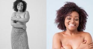 Candidata a musa de Toplessaço teve câncer de mama e reconstruiu seio